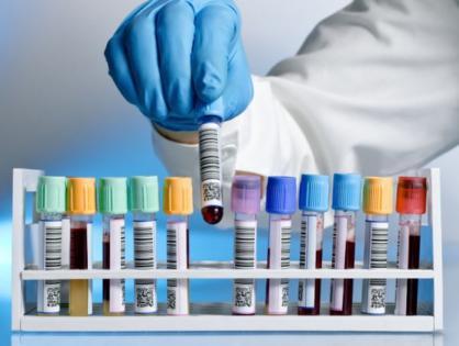 Исследование на гепатиты