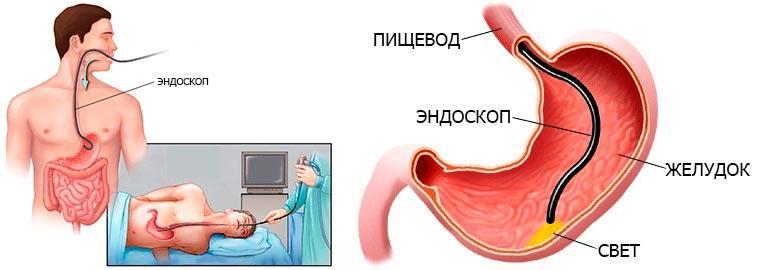 Гастроскопия (ФГДС)