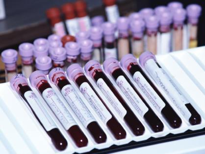 Исследование бактериологическое